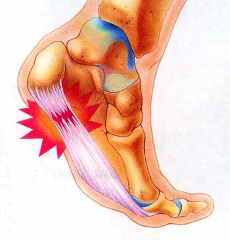 Foot Pain & Plantar Faciitis